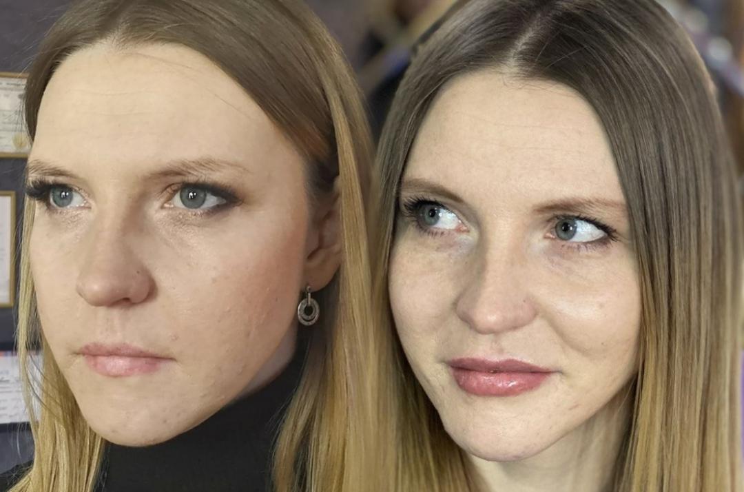 Филлер + перманентный макияж губ.