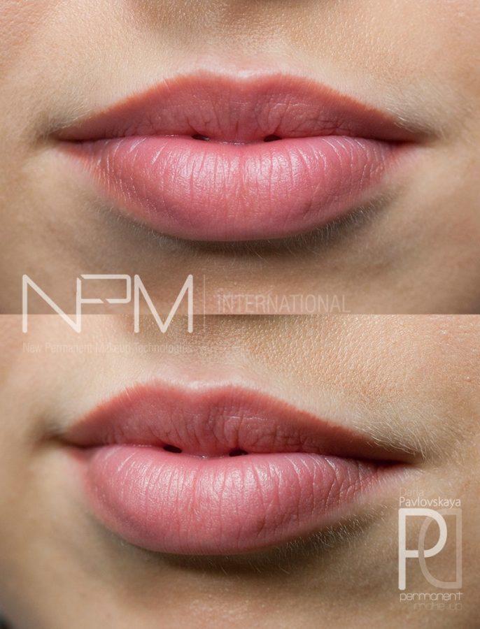 Татуаж губ в технике «Nude» спустя 1,5 месяца пред коррекцией